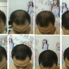 白发变黑发的方法莲池路218号发森林白发怎么办白发变黑发的秘方图片