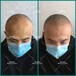贵州遵义的纹发连锁机构鼎点视觉纹发纹头发靠谱儿