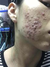 如何多年的密密麻麻粉刺脓胞痘才能好深圳七老红梅护肤品