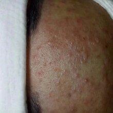 皮肤长痘粉刺要怎么修复好七老护肤品红梅
