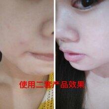 皮肤暗黄有痘痘毛孔粗大用什么护肤品改善