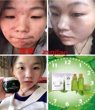 为什么脸上的痘痘好了又长,痘痘用什么牌子护肤品