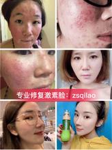 为什么激素脸还没痊愈,激素脸要用什么牌子护肤品才可以完全修复