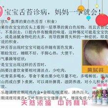 看宝宝舌苔诊病,让宝妈一学就会!图片