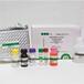 麻疹病毒IgG抗體檢測試劑盒(酶聯免疫法)