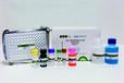 水痘-帶狀皰疹病毒IgG抗體檢測試劑盒(酶聯免疫法)