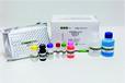 白喉類毒素IgG抗體檢測試劑盒(酶聯免疫法)