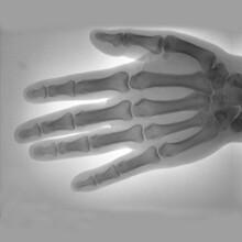 江門便攜式X射線機廠家供應圖片