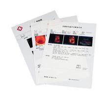 珠海榮威醫用膠片激光瓷白膠片(超聲)圖片